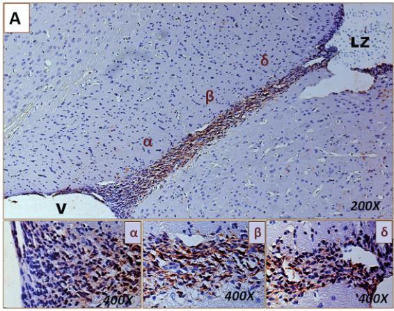 図:新生した脳神経細胞の移動