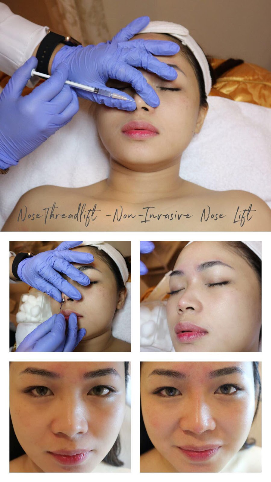 The Beauty Empire - Newest Beauty Treatments - Female Beauty Blogger