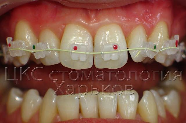 Зубы сразу после приклеивания керамических брекетов
