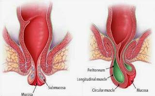 Image Obat Wasir Hemoroid