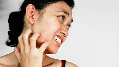 Foto Cara memghilangkan alergi gatal lipatan selangkangan