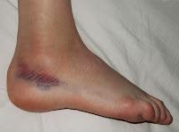 Paciente con esguince lateral del tobillo
