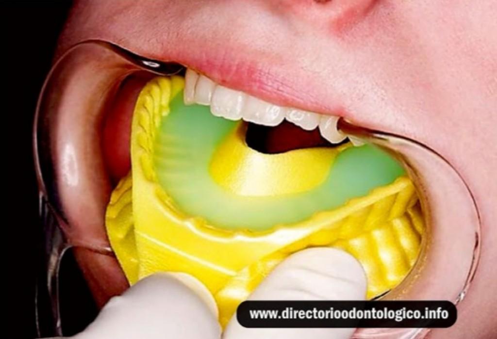 Fluor Dental Prevencion