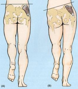 Dor no quadril e fraqueza muscular