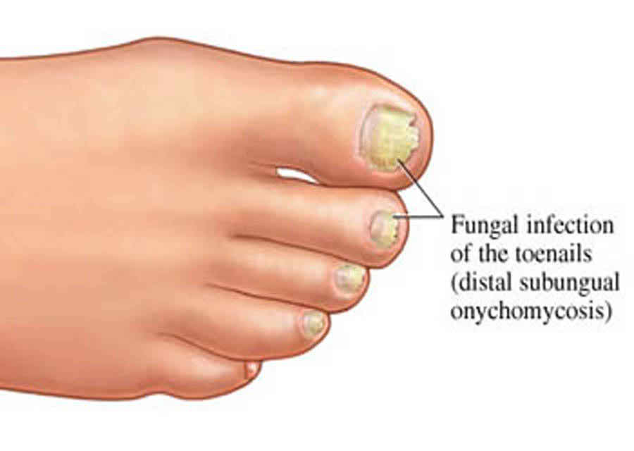 Fungal Nail Infection, like fungal infections can attack the skin, fungus can also affect the nails.
