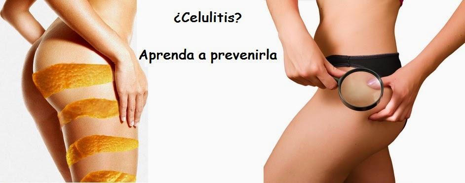 TRATAMIENTO CELULITIS