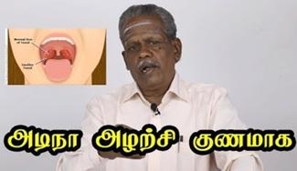 Tonsillitis | KidsHealth | Maruthuvam