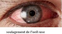 Avoir un soulagement de l'oeil rose
