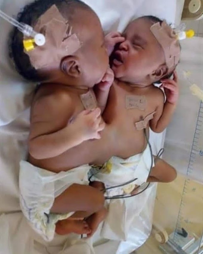 Nigerian Doctors Successfully Separate Conjoined Twins At Abuja Hospital