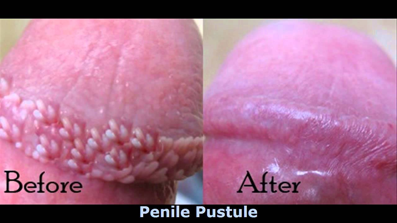 Toothpaste Penis 89