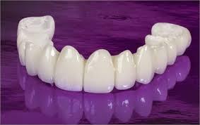 Ưu điểm của răng sứ Venus