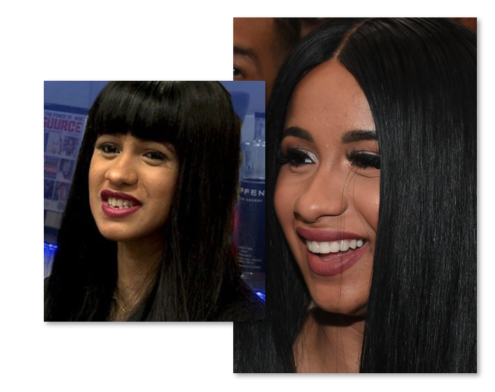 Cardi B Teeth Before And After Old Smile Vs New - EMPIRE BBK