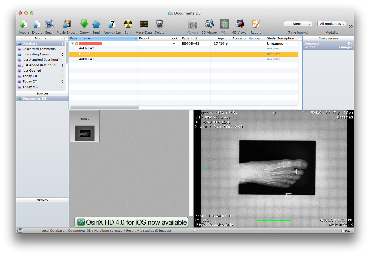 Mac IT Help: Viewing your X-Rays