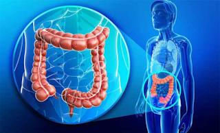 Αμερικανοί επιστήμονες: Το λάδι που καταστρέφει το 90% των καρκινικών κυττάρων στο έντερο