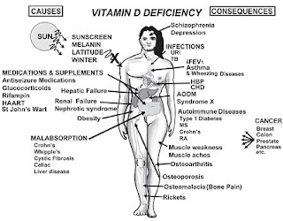 Vitamin D: Benefits Outweigh Spurious Study Linking Low Levels to Longevity