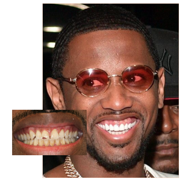Fabolous Teeth Before And After Empire Bbk