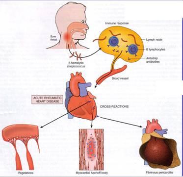 Rheumatic Heart disease (RHD) Penyakit demam rematik kelainan jantung