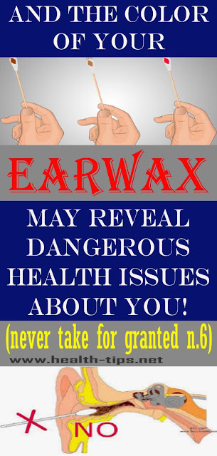 8 Things Your Earwax Could Reveal About Your Health#NATURALREMEDIES