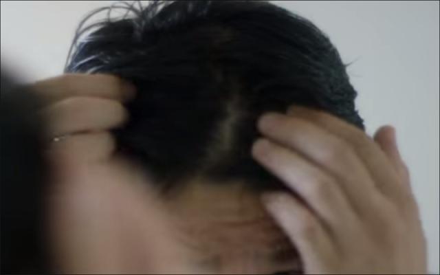 M字ハゲは髪が全然生えない!