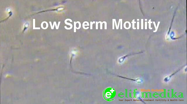 Ilustrasi Sperma Motilitas / Pergerakan Rendah