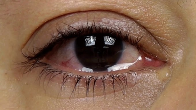 Natural Home Remedies for Watery Eyes