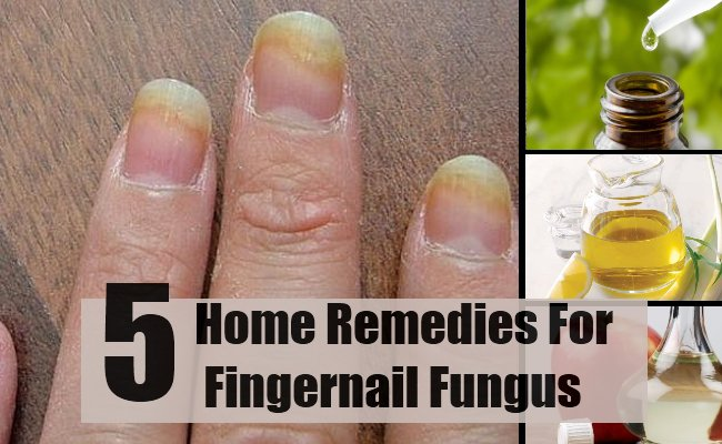How To Cure A Fingernail Fungus Naturally