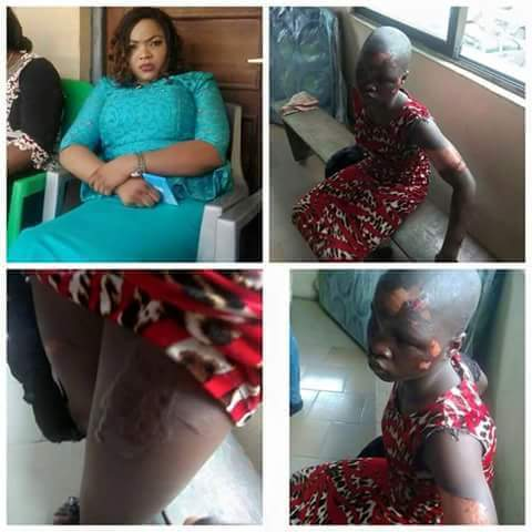 HEARTBREAKING DETAILS OF HOW WOMAN BRUTALIZED HER 10YR OLD MAID WITH HOT IRON AND HOT WATER (PHOTOS)