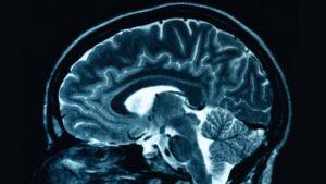 Beyin Küçülmesi Nedir? Nasıl Anlaşılır