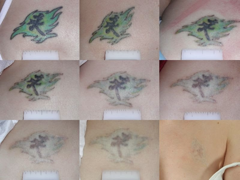 April 2016 | tattoo removal BY cream