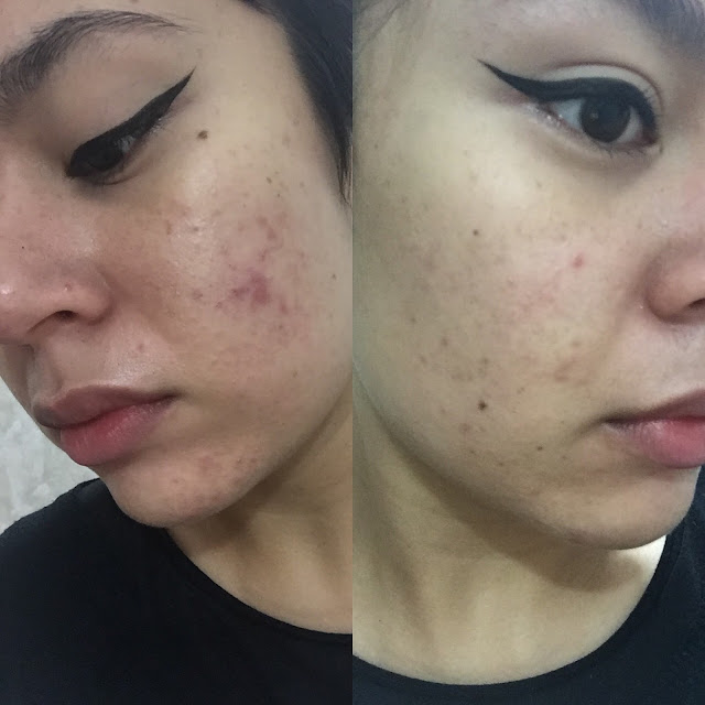 Retin-A Before and After—Before photo