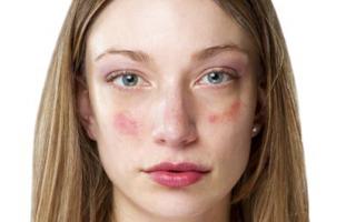 Efek Samping Dari Penggunaan Krim Malam Pada Wajah