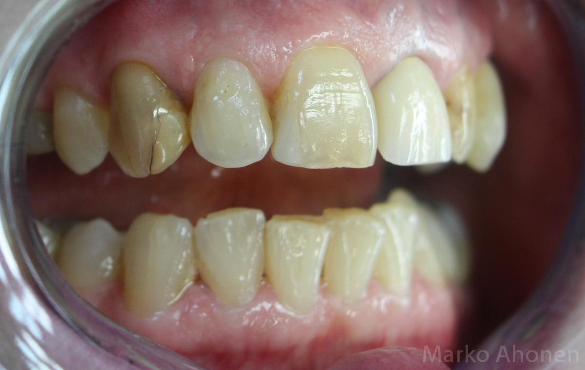 Lohjenneen Hampaan Korjaus