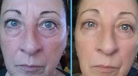 Just How Do Yoga Facial Exercises Fade Eye Bags And Black Circles
