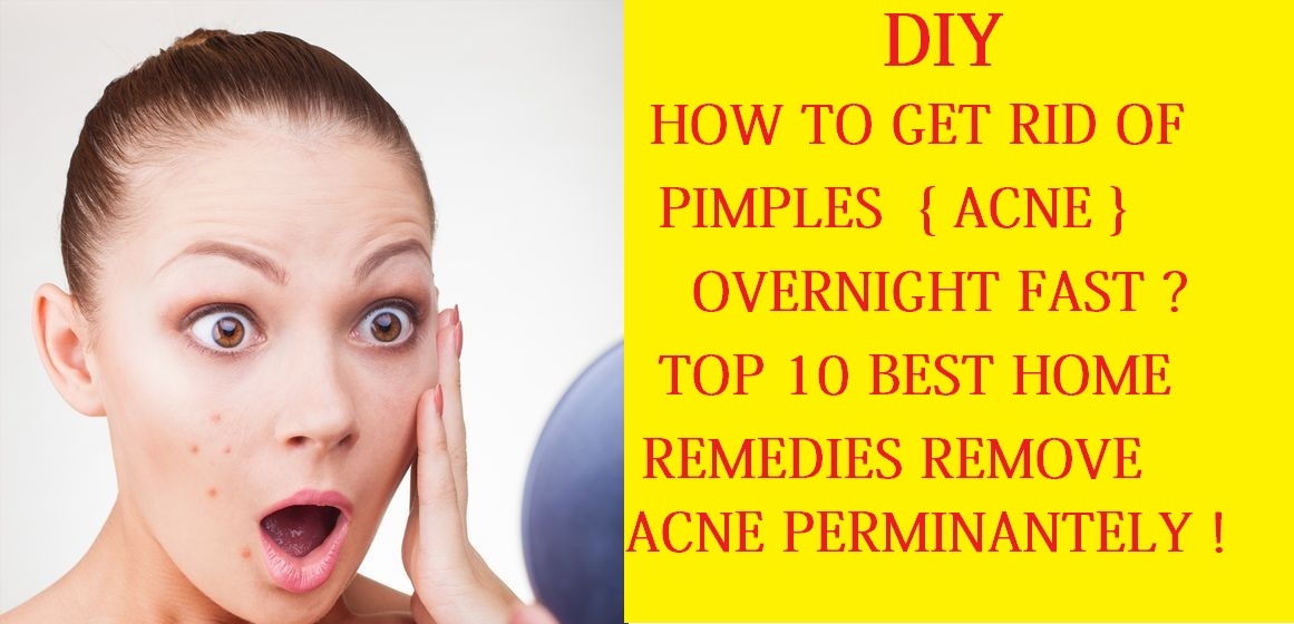 How To Get Rid Of Pimples Acne Overnight Fast Home Remedies