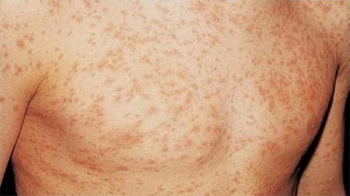 HIV rash usually affects the face and large areas of the body such as the chest pictures of hiv rash