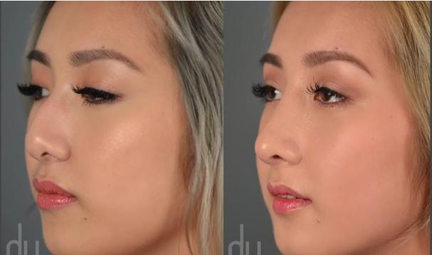 asian rhinoplasty procedure korean nose job experience