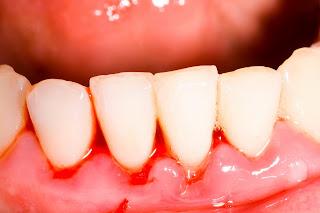 Răng sâu chảy máu phải làm sao để khỏi dứt điểm?