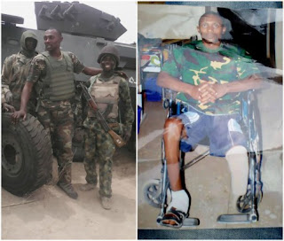 Nigerian Soldier who lost his leg while fighting Boko Haram, accuses Nigerian Army of neglect
