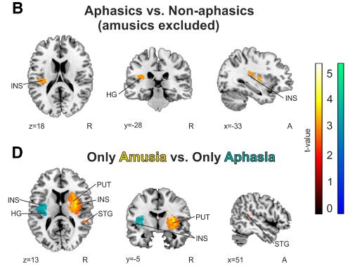 図:失音楽症と脳の部位