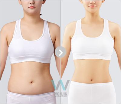 짱이뻐! - [Get to Know] Korean Body Contouring - Liposuction