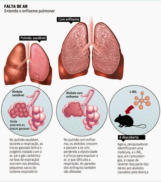 #Bronquite | Sintomas e Tratamento