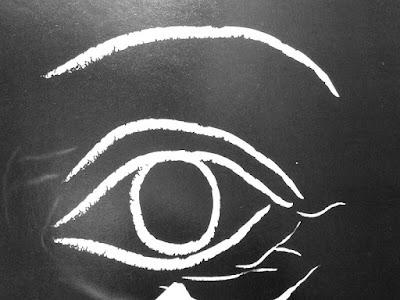 Gambar Mata Juling : Penyebab Juling Dan Cara Mengobati Mata Juling Pada Anak