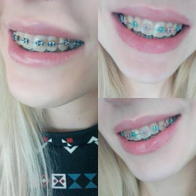 http://falteria.blogspot.com/2017/03/aparat-ortodontyczny-ile-kosztuje-czy.html