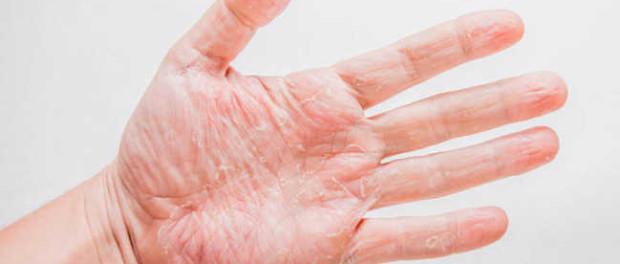 skin irritations on hands #10