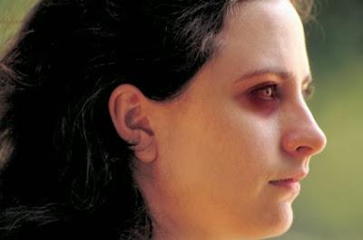 قصص واقعية :ادعى انها حاولت الانتحار وأدخلها مشفى الأمراض النفسية!