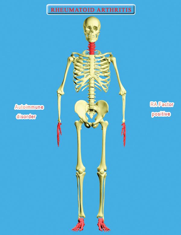 relationship between sciatica and arthritis
