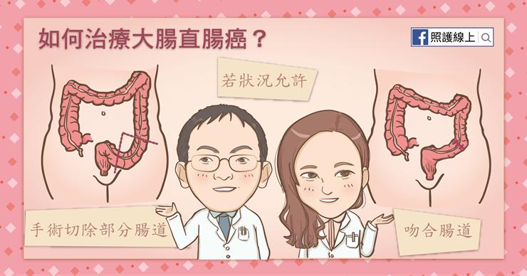 大腸直腸癌的手術方式