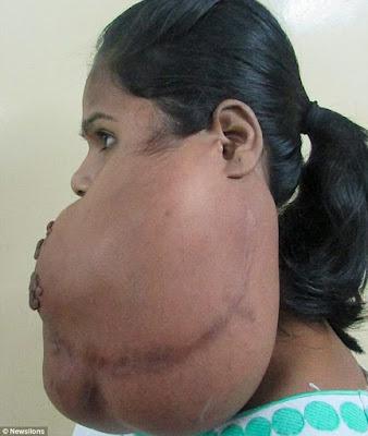 massive tumour growing on young girl's cheek