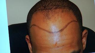 Men who go bald before age 40 risk heart attack –Study