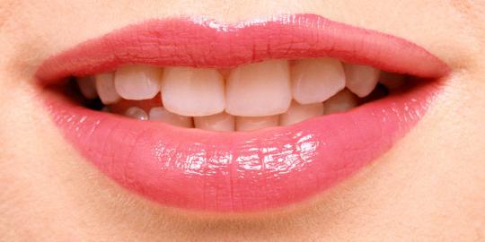 Bibir yang kering bisa anda atasi dengan cara berikut